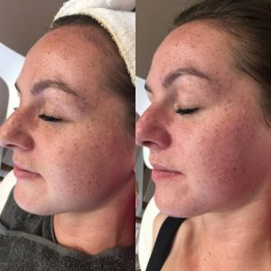 Before and After skin peel