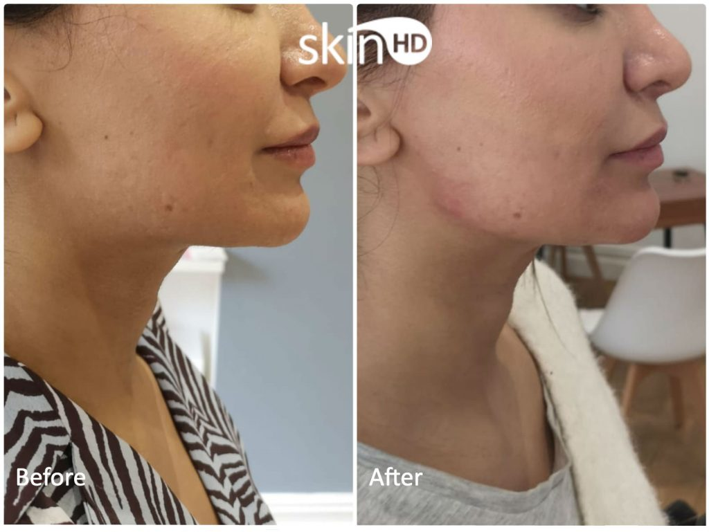 Before and After 2ml Juvederm Volux® Jawline Dermal Fillers.