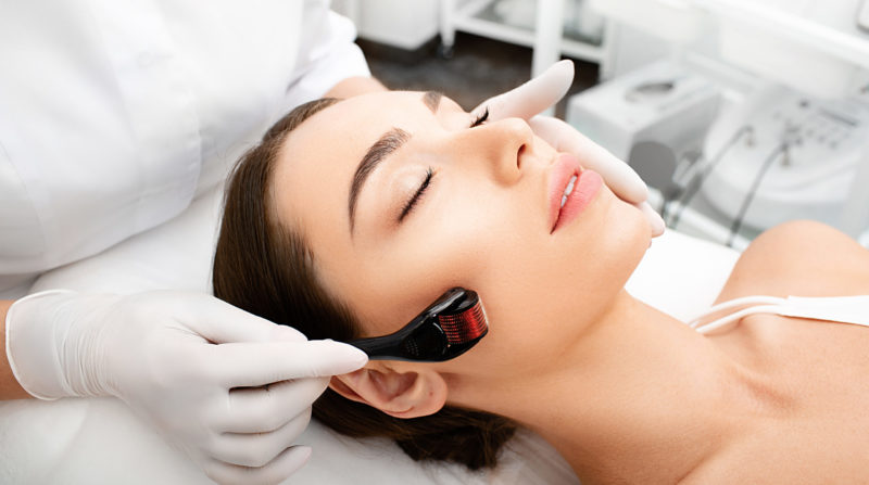 Derma Roller treatment